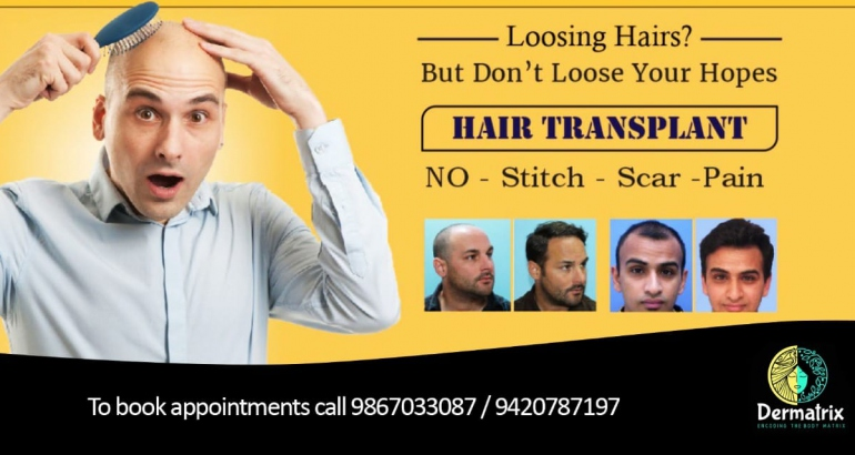 Care for your loss of Hair